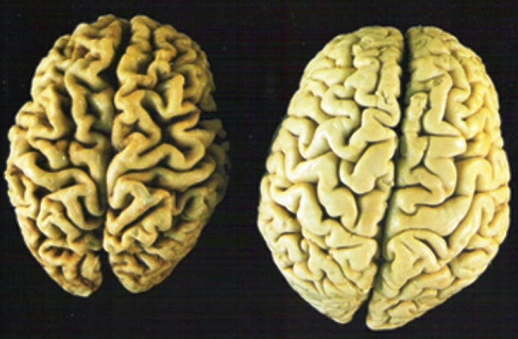 brain exercise with dr kawashima crack